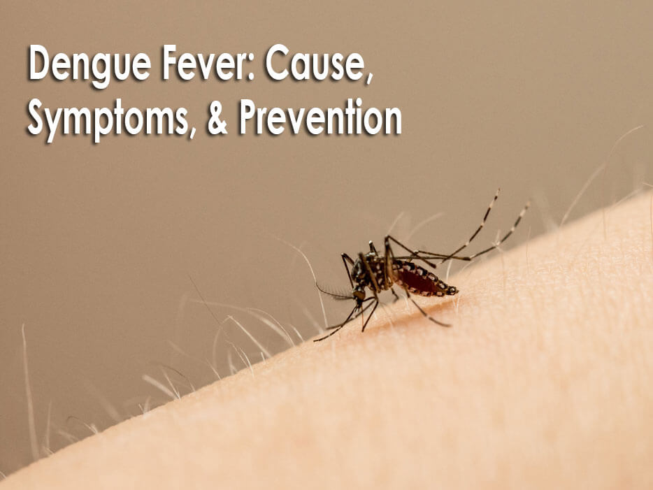 Dengue Fever: Cause, Symptoms, & Prevention